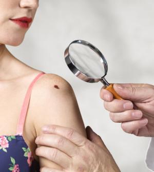 melanoma prevenzione