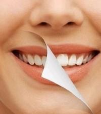 Pulizia dentale Sorriso e Salute Chioggia