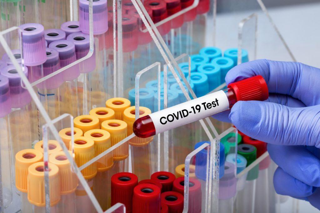 covid-19-dati-aggiornamento-